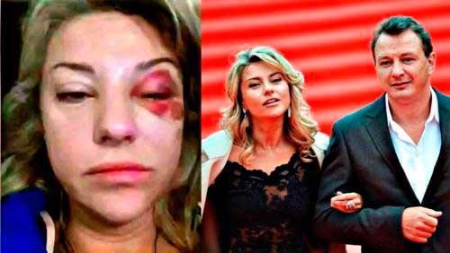 Битва экстрасенсов Башаров избил жену